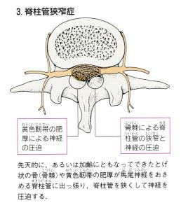 坐骨神経痛④